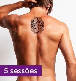 Remoção de Tatuagem de 36 a 120 cm²
