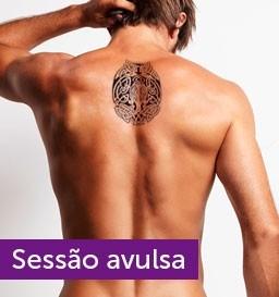 Remoção de Tatuagem de 36 a 120 cm² (1 sessão)
