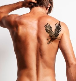 Remoção de Tatuagem de 121 a 255 cm² (1 sessão)