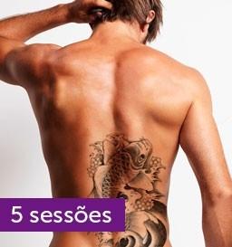 Remoção de Tatuagem de 676 a 900 cm²