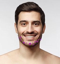 Harmonização Facial com Volyme ®