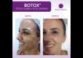 Botox ® Power
