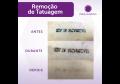 Remoção de Tatuagem de 121 a 255 cm²