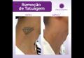 Remoção de Tatuagem de 256 a 440 cm²