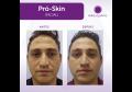 Pró-Skin